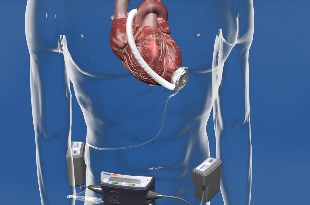 Übersicht der VAD-Systeme | Herz- und Diabeteszentrum NRW